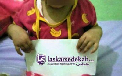 LS Jakarta : Eksekusi Sedekah kepada Nurasyfa (2 tahun) yang menderita tumor ganas pada hidungnya di Desa Jayabakti, Kab. Bekasi   Ahad, 14 April 2019